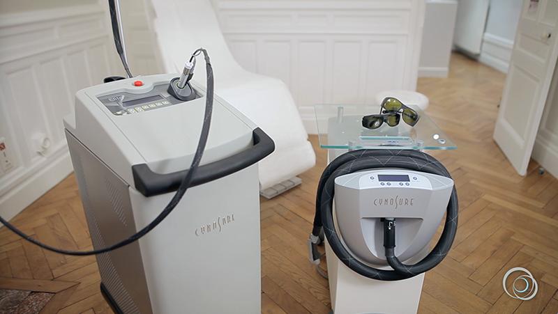 Epilation definitive à Paris : Laser pour épiler